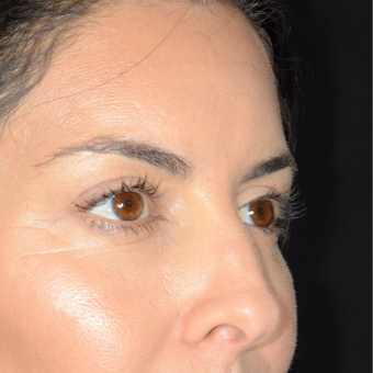 35-44 year old woman treated with Eyelid Surgery after 3099358