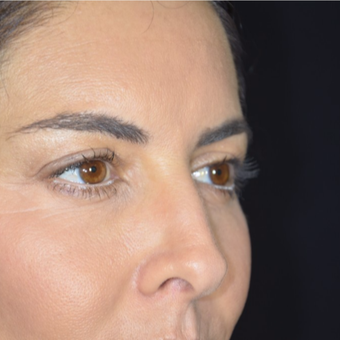 35-44 year old woman treated with Eyelid Surgery before 3099358