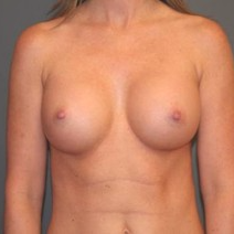 45-54 year old woman treated with Breast Implants after 3299897