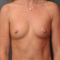 45-54 year old woman treated with Breast Implants before 3299897