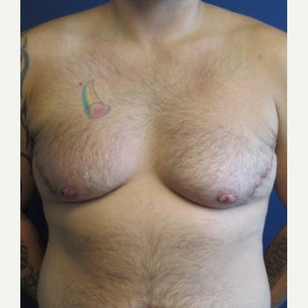 FTM Chest Masculinization Surgery after 1989404