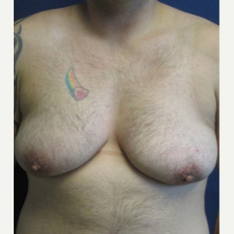 FTM Chest Masculinization Surgery before 1989404