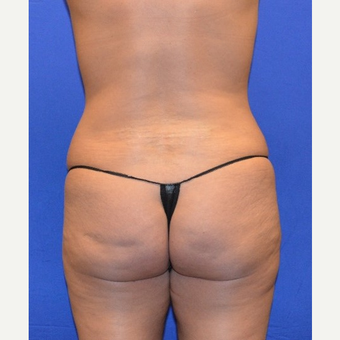 35-44 year old woman treated with Liposuction before 3655690