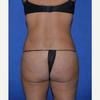35-44 year old woman treated with Liposuction after 3655690