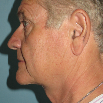 55-64 year old man treated with Neck Lift after 3396967