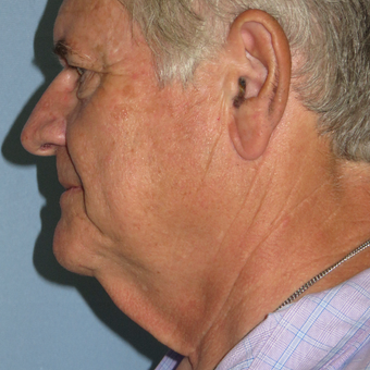 55-64 year old man treated with Neck Lift before 3396967
