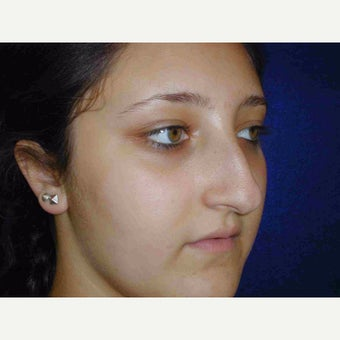 17 or under year old woman treated with Rhinoplasty before 1735580