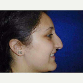 17 or under year old woman treated with Rhinoplasty 1735580