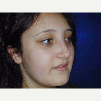 17 or under year old woman treated with Rhinoplasty after 1735580
