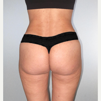 25-34 year old woman treated with Brazilian Butt Lift after 3104478
