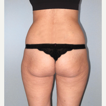 25-34 year old woman treated with Brazilian Butt Lift before 3104478