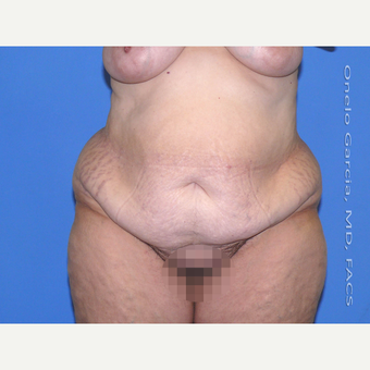 35-44 year old woman treated with Body Lift before 3041496