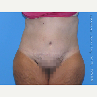 35-44 year old woman treated with Body Lift after 3041496