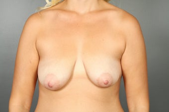 Breast Lift with Implants before 1340123