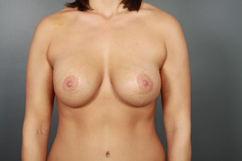 Breast Lift with Implants after 1340123