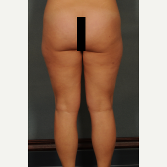 35-44 year old woman treated with Liposuction before 2975597