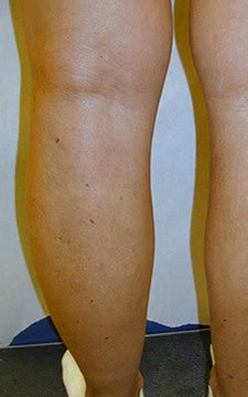 Patient treated for blue bulging varicose veins of the legs after 914981