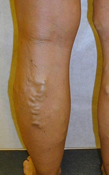 Patient treated for blue bulging varicose veins of the legs before 914981