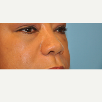 45-54 year old woman treated with Rhinoplasty after 3446910