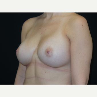 18-24 year old woman treated with Breast Implants after 3652066