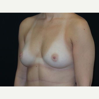 18-24 year old woman treated with Breast Implants before 3652066