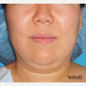 45-54 year old woman treated with Smart Lipo before 2697003