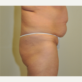 55-64 year old woman treated with Tummy Tuck before 3844356