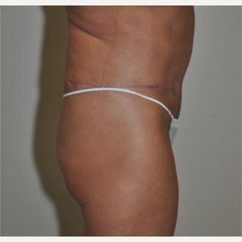 55-64 year old woman treated with Tummy Tuck after 3844356