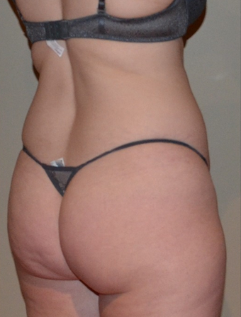 35-44 year old woman treated with Brazilian Butt Lift before 1595413