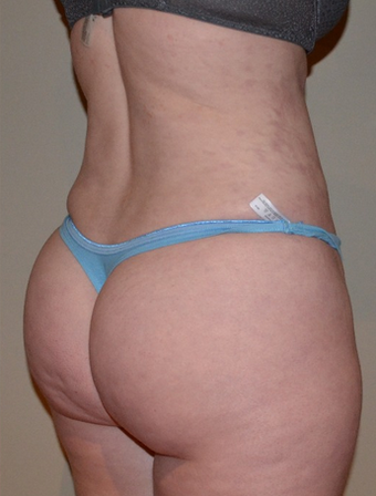 35-44 year old woman treated with Brazilian Butt Lift after 1595413