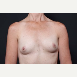 35-44 year old woman treated with Breast Augmentation before 3571004