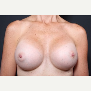 35-44 year old woman treated with Breast Augmentation after 3571004