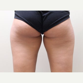 25-34 year old woman treated with Cool Lipo