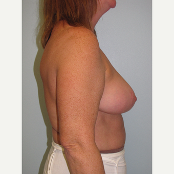45-54 year old woman treated with Breast Reduction after 3851600