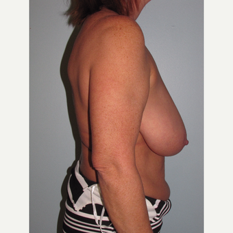 45-54 year old woman treated with Breast Reduction before 3851600