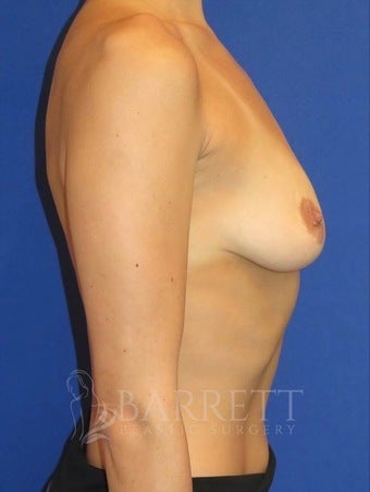 25-34 year old woman treated with Breast Implants 3605840