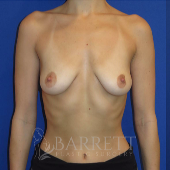 25-34 year old woman treated with Breast Implants before 3605840