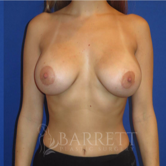 25-34 year old woman treated with Breast Implants after 3605840