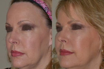 58 year old presented for facial contour improvement. No previous surgery. before 1270762