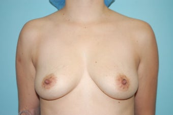 Textured Silicone Breast Augmentation before 1488161