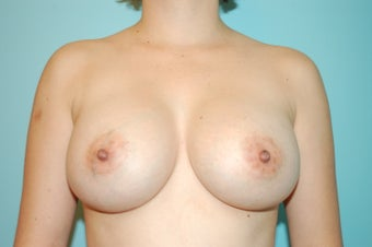 Textured Silicone Breast Augmentation after 1488161
