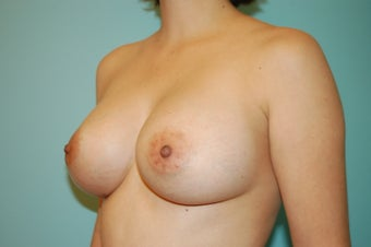 Textured Silicone Breast Augmentation 1488161