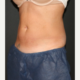 35-44 year old woman treated with CoolSculpting after 3148340