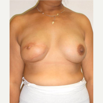 35-44 year old woman treated with Breast Reconstruction after 3502612