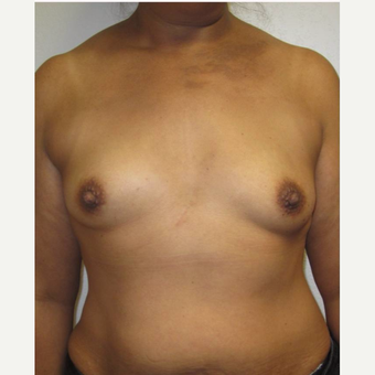 35-44 year old woman treated with Breast Reconstruction before 3502612