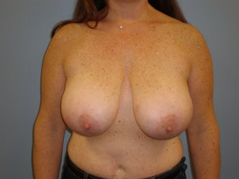 43 Y.O Woman who had a Breast Reduction. before 1372424