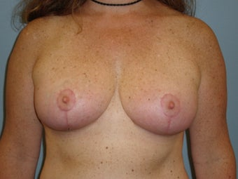 43 Y.O Woman who had a Breast Reduction. after 1372424
