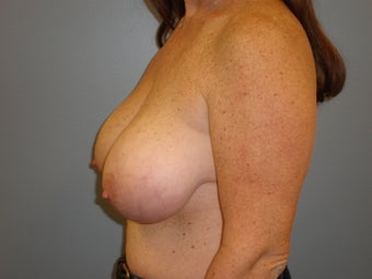 43 Y.O Woman who had a Breast Reduction. 1372424