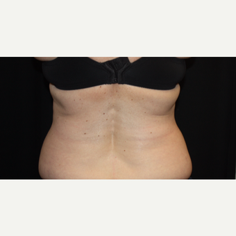 55-64 year old woman treated with CoolSculpting after 3366359