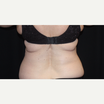 55-64 year old woman treated with CoolSculpting before 3366359